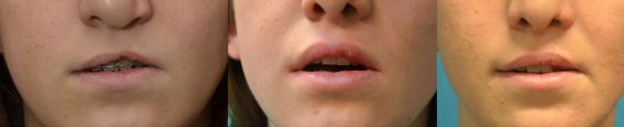 Séquelle de fente labio-alvéolaire. Avant (photo de gauche), 9 semaines après (photo du milieu) et 17 mois après (photo de droite) injections d'acide hyaluronique réticulé.
