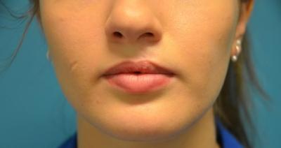 Avant injections d'acide hyaluronique, patiente de 19 ans avec cicatrice sur la joue et séquelle de fente labio alvéolaire gauche.