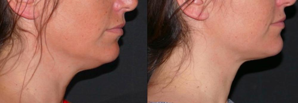 Correction du double menton par liposuccion