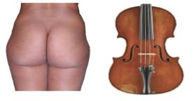 liposuccion fesses et hanches