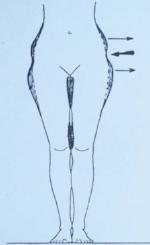 schéma liposuccion et lipofilling naturels