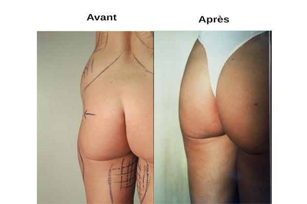 avant / après liposuccion silhouette