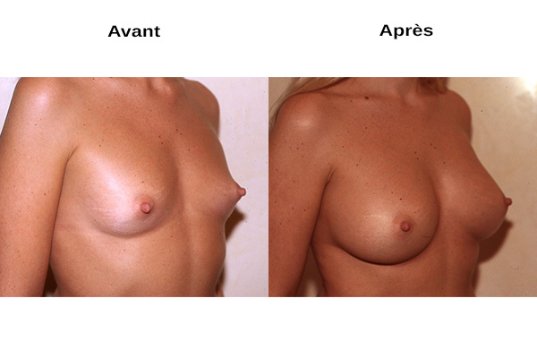 Avant après augmentation poitrine naturelle