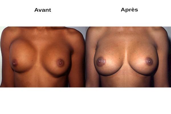 augmentation mammaire naturelle voie axillaire
