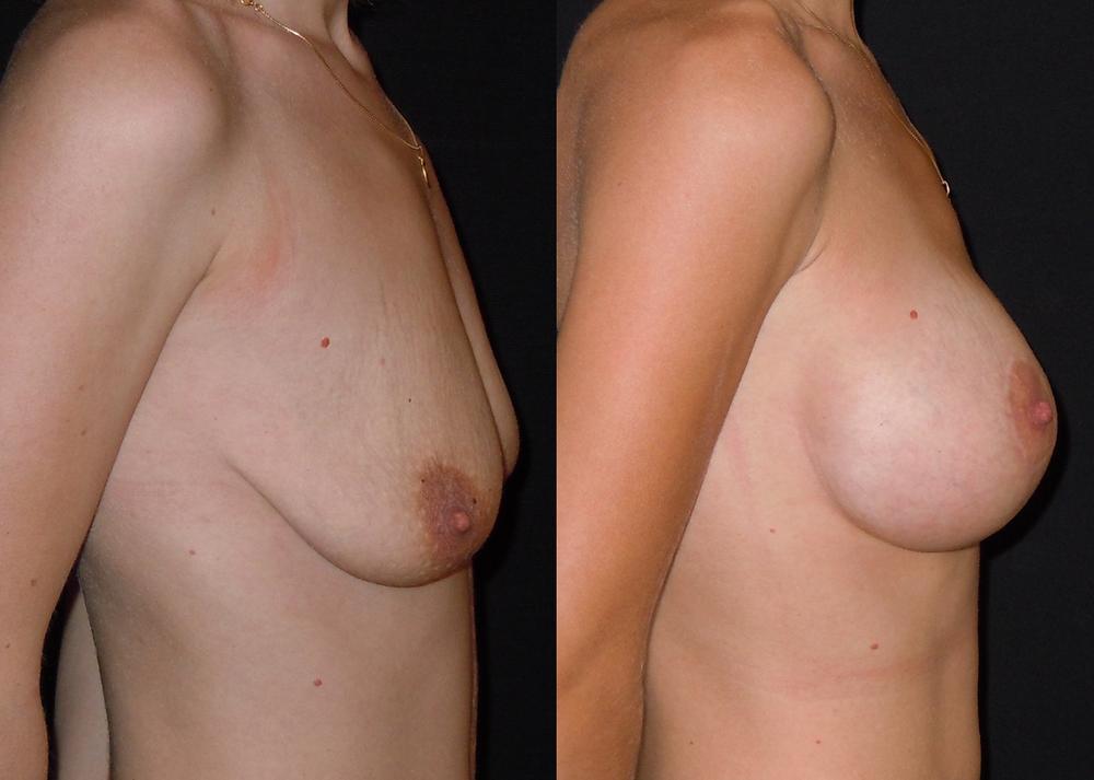 profil avant après mastoplexie avec implants mammaires