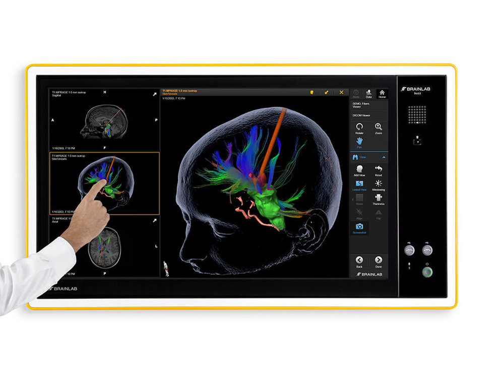 Brainlab-Buzz-DICOM-Viewer.jpg