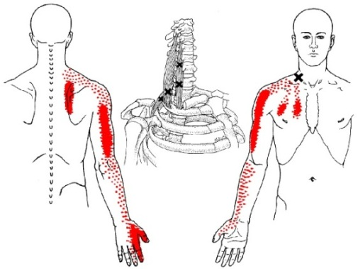 Sample of Scalene Muscle trigger points and referred pain pattern