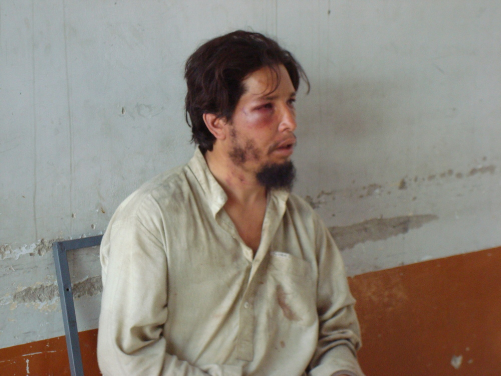 Despite being responsible for keeping Afghanistan National Police from abusing prisoners, Tim Patterson saw many had been assaulted prior to reaching the prison facility where he worked. Photo courtesy of Tim Patterson.