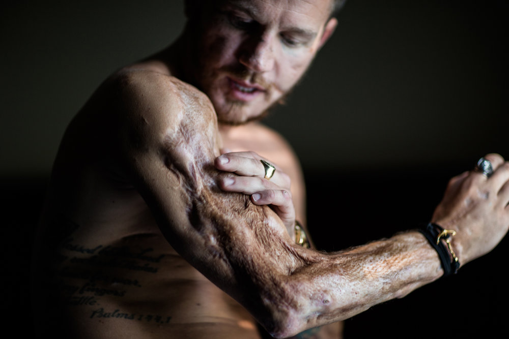 Inside The Painstaking Recovery Of A Medal of Honor Marine