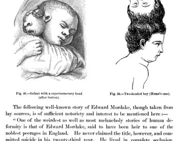 Ilustraciones y parte de un texto sobre el caso de Mordrake