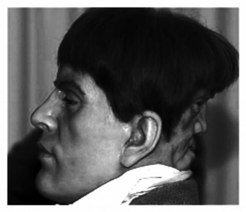 Fotografía de la apariencia que debió tener Edward Mordrake