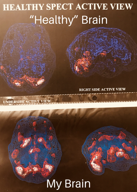 MPTH brain scan