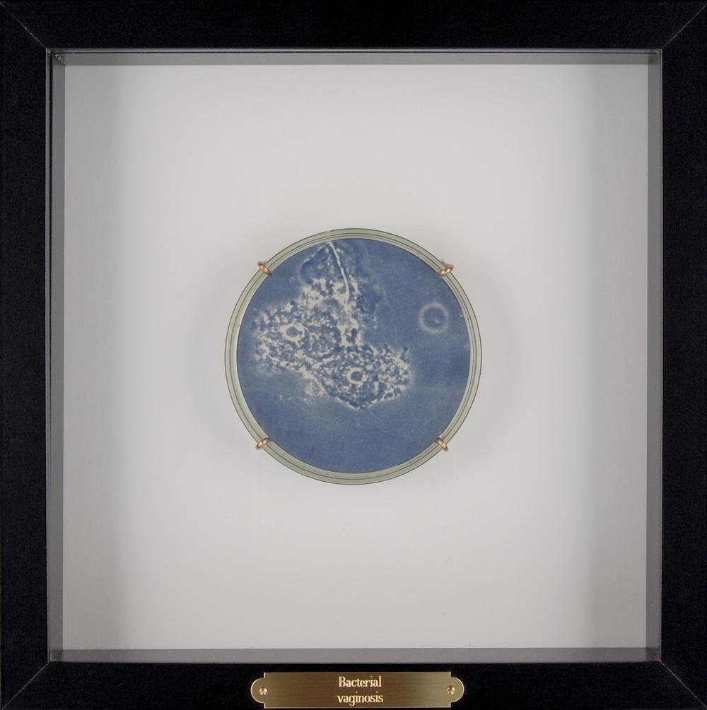 bacterialvaginosis.jpg