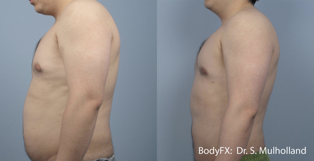 SM_BODYFX_5a_Male_LS 2.JPG