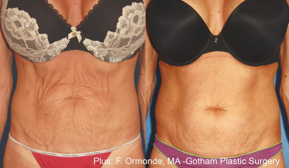 FO_Plus_1a_8weeks_1to2weeksapart_60mj_cutoff43_10to12mineachtreatment 2.JPG