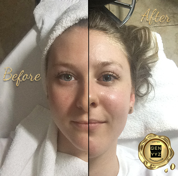 Beauty Feature: HydraFacial at the Beauty Bar Laser Clinic HydraFacial Before & After -  GenerationYYZ - Toronto Blog | Toronto Lifestyle Blog | Toronto Luxury Lifestyle Blog | Lifestyle Blog | Toronto's Luxury Lifestyle Blog | Toronto Blogger | Toronto Lifestyle Blogger | Blogger