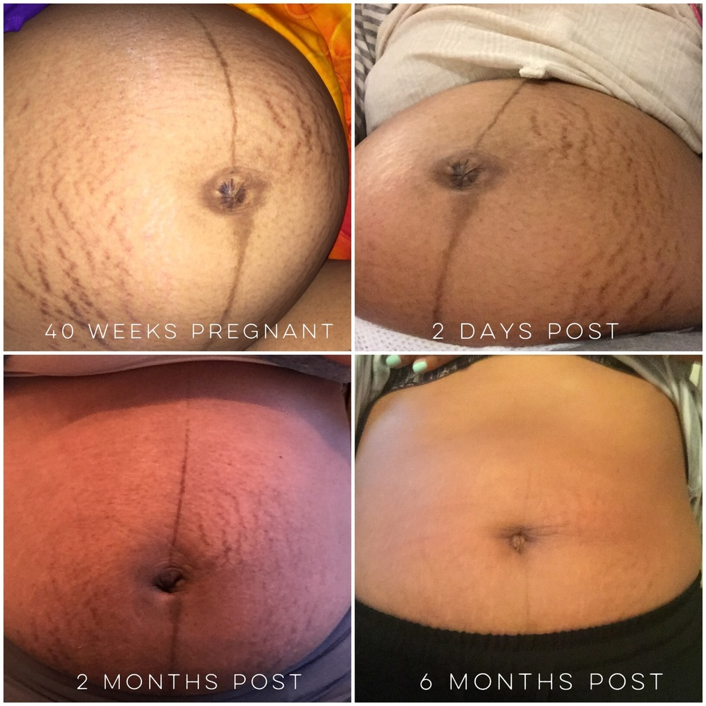My personal Stretch Mark cream results