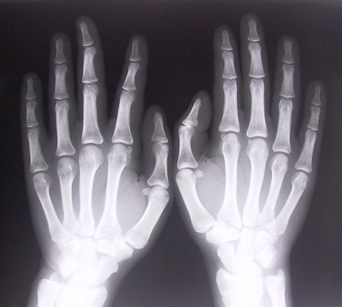 X RAY IMAGE OF THE HANDS
