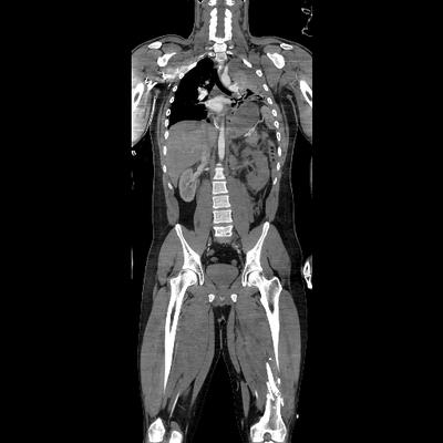 FUll body CT Health Screen