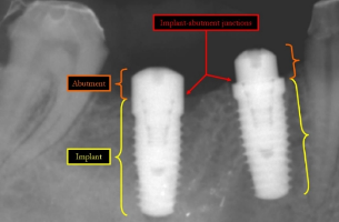 dental implant.jpg