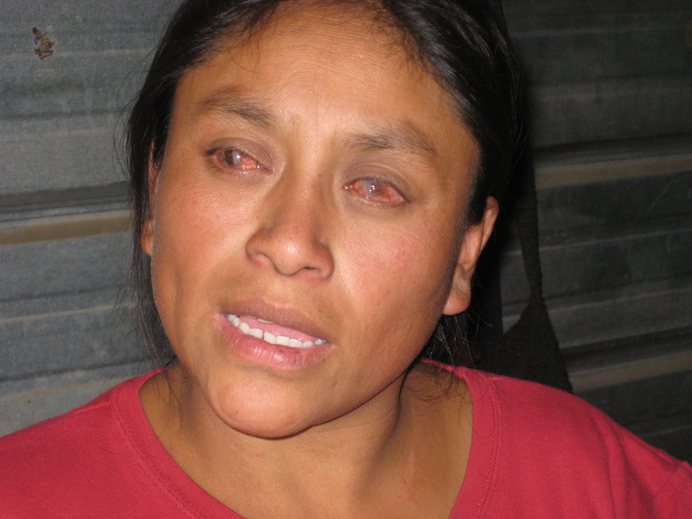 This was Juana when we met her. Her eyes were bloodshot from her lack of vision, and she could not see a thing.