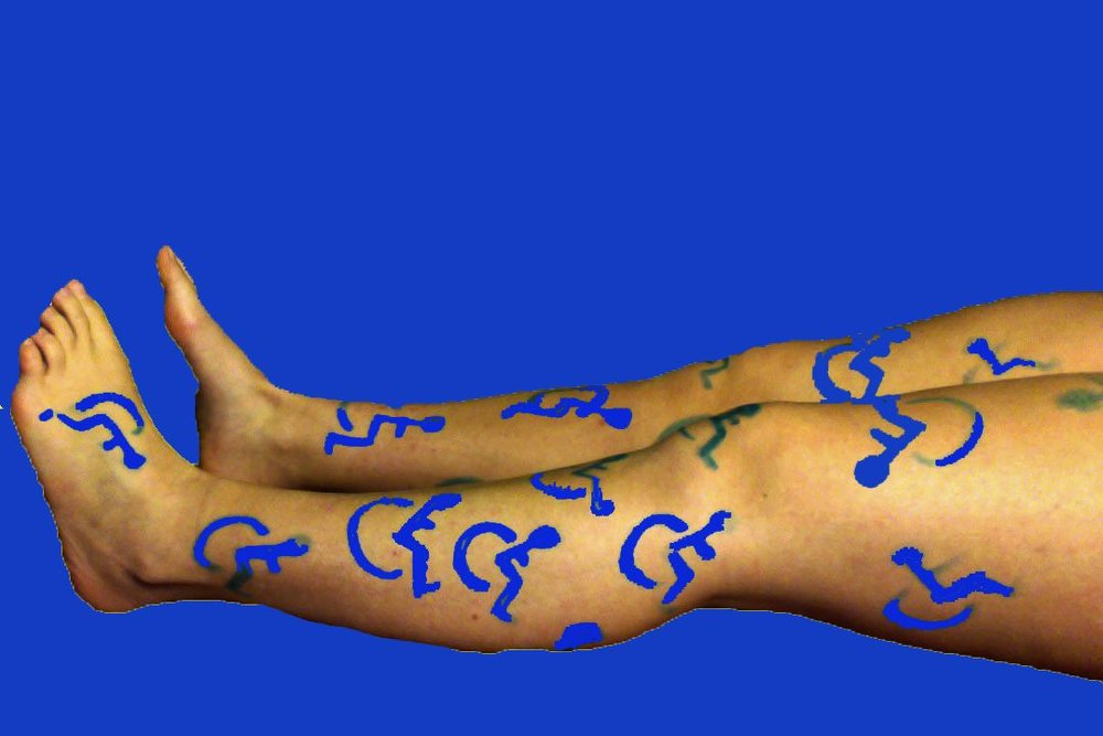 Horizontal legs with Access symbols covering both legs. Back ground is blue matching the Access symbol color.