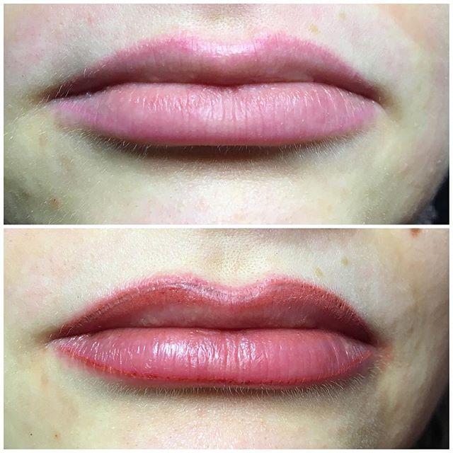 """Huulten pigmentointien vahvistus kahden vuoden jälkeen. Alemmassa kuvassa huulet heti teon jälkeen.  Kestopigmentoinnin tekemiseen varataan aikaa noin kaksi tuntia. Ennen toimenpidettä kestopigmentoinnin malli suunnitellaan huolellisesti yhdessä asiakkaan kanssa. Käsittelyn miellyttävyyttä lisätään käyttämällä pintapuuduteainetta. Pysyvän tuloksen saamiseksi pigmentointi tehdään kahdessa erässä – jälkipigmentointi aikaisintaan kolmen viikon kuluttua ensimmäisestä kerrasta. Kestopigmentoinnin vahvistusta suositellaan 1–3 vuoden välein. Kestopigmentointi on turvallista ja lähes kivutonta ammattitaitoisen pigmentoijan tekemänä.  Kotihoito-ohjeet  Pigmentoinnin tulos näyttää 4-5 päivän ajan lopullista väriä tummemmalta. Sen jälkeen ylimääräinen väri irtoaa, """"hilseilee"""", kuolleen ihosolukon mukana. Silmänrajausten yhteydessä saattaa esiintyä turvotusta, joka kestää päivästä kahteen. Huulien pigmentointi voi laukaista huuliherpeksen siihen taipuvaisilla. Oireiden ilmaantuessa käytä välittömästi Zoviraksia tai muuta vastaavaa voidetta.  #kestopigmentointi #microblading #micropigmentation #beforeandafter"""