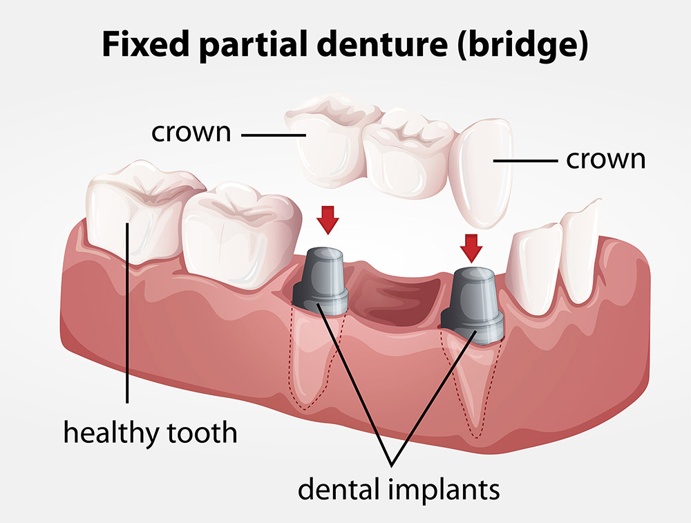 Capitol Hill  dental  oklahoma  hygiene  porcelain  implants  teeth  tooth  whitening  dentist  family  oral  health  braces  crowns  bridges  dentures  extraction  night  athletic  guards  orthodontic  periodontic  root canal  sedation  sleep apnea  snoring  tmp  veneers  smile  gentle  beautiful  radiant  dental plan  insurance  best   equipment