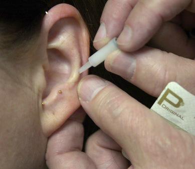 ASP Ear Tx.png