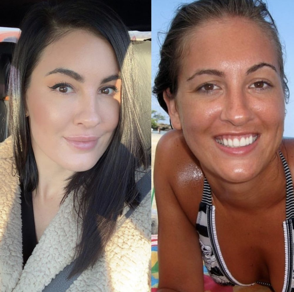 10 Year Glow Up - The #glowup is real! The first picture was today - January 12, 2019 and the second picture was 10 years ago on my honeymoon. First off, I was a chronic tanner which destroyed the skin on my entire body permanently. I refused to get Botox and fillers on myself although I was just starting to inject it in other people. I had zero diet restrictions and ate whatever I wanted and it would of NEVER consisted of juicing or greens. I HATED the gym. You couldn't get me to step foot in the gym. Now coming up on 36 in a few months I feel better than I have ever felt in my life as far as my health goes and I feel like I don't look like I am an orange, leathered, wrinkly human anymore! I love eating clean, I love the gym, I love Botox and fillers, I love skincare, I love being healthy!