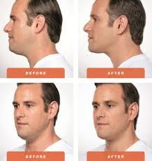 man double chin.jpg