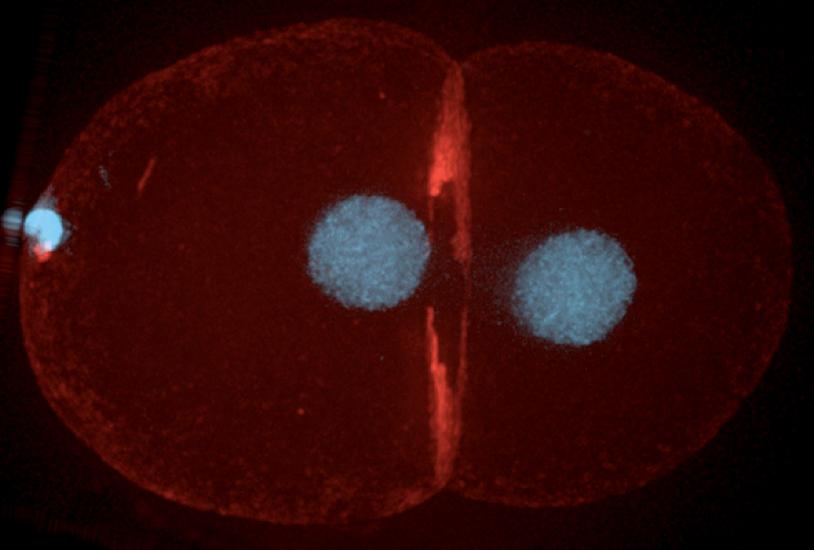 cytokinesis_Celegans_DNA & contractile ring.jpg