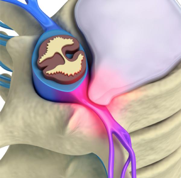 Protrusione del disco intervertebrale su uno dei due fasci nervosi