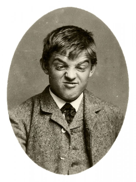 Carl Nielsen pulling faces in 1887