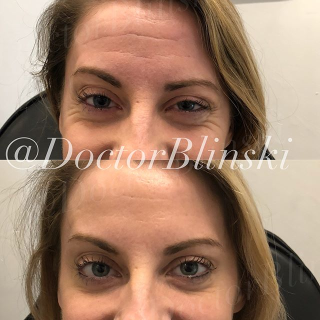 An example of what a little #botox can do for those pesky wrinkles of the forehead and crows feet (around the eyes). Her results took 2 weeks to show up and will last around 3 months or more. She is ecstatic, wait for her full experience story to appear on our @getplump page! This procedure takes 5-10 minutes and costs less than $750! 🙌