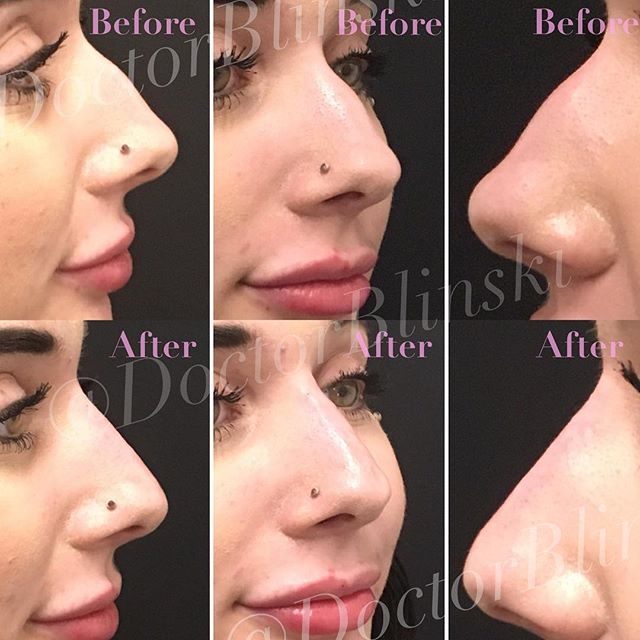 Is it Hump day?! NOPE. 👋BUH BYE 👋  little nasal prominence. We were able to get rid of her tiny nose bump with hyaluronate filler. This treatment took 10-15 minutes and will last about a year. Results are immediate to two weeks.