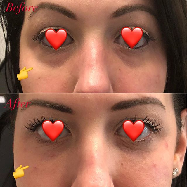 Tired Eyes - No More 👀  These results should last this amazing client 1 year or more. We used a special technique to reduce risk of bruising and added filler to the under-eye hallows. This technique should be done by experienced injectors (just as all fillers). #fillers #eyes #tired #awake #tiredeyesnomore