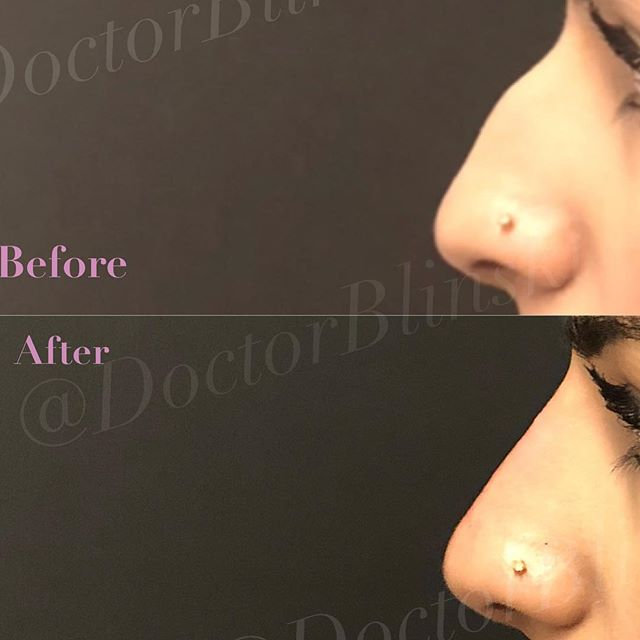 🤔Liquid Nose Job 😅Lasts about 1 year 😏May Require touch-ups ⏱Takes 15-20 minutes 💰Costs $900-1,500 🤐Specialized Technique to improve final results 👉Book online: www.symmetrymedicine.com