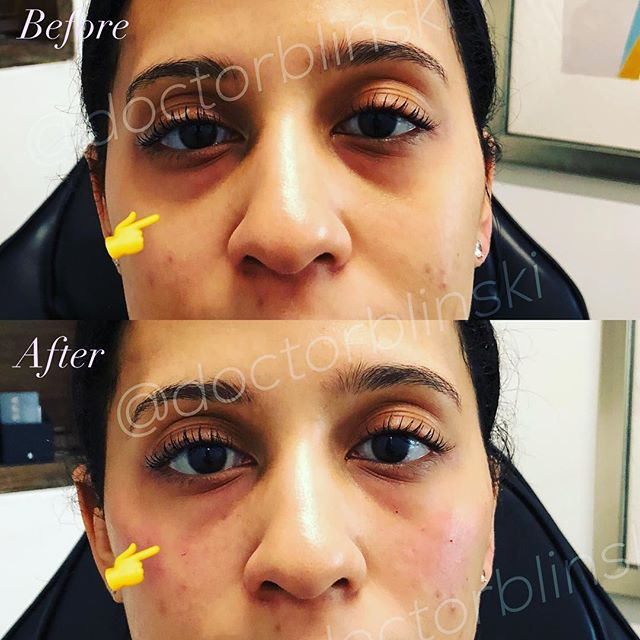 🚫Just Say No🚫 to these dark circles. We used filler to soften some dark circles and add volume to cheeks for a well rested and refined/contoured look. These results will last a year or longer and only get better. We may add some more filler under the eye at a later date. Avg cost $1,600 for this treatment.