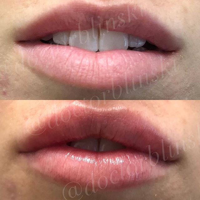 Cause you asked. Some beauties done with client specific hyaluronic acid filler in a linear threading 8 poke technique. These results should last approximately one year. Swelling and bruising will resolve in 1-2 weeks. To book with me please see my link in profile. #lips #juvederm #filler #nyc #chelsea #getpluml @getplump