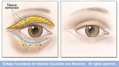 blepharoplasty illustration