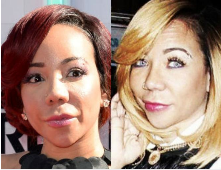 "Tameka ""Tiny"" Harris before (left) and after her eye color surgery."