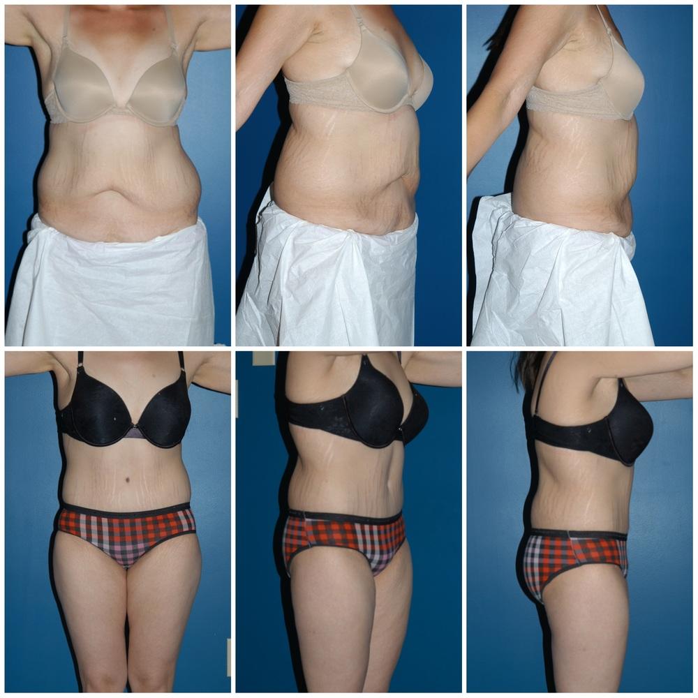 Abdominoplasty