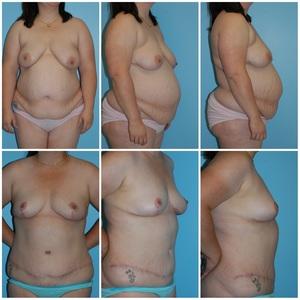 Tummy Tuck 3.jpg