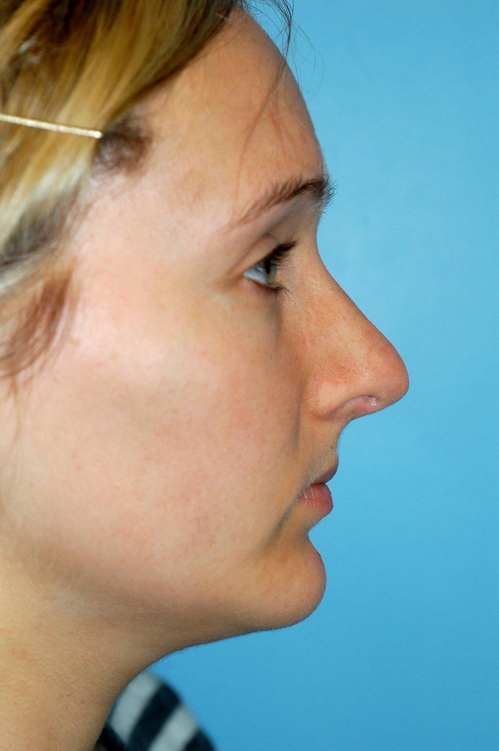 nose-reshape-after.jpg