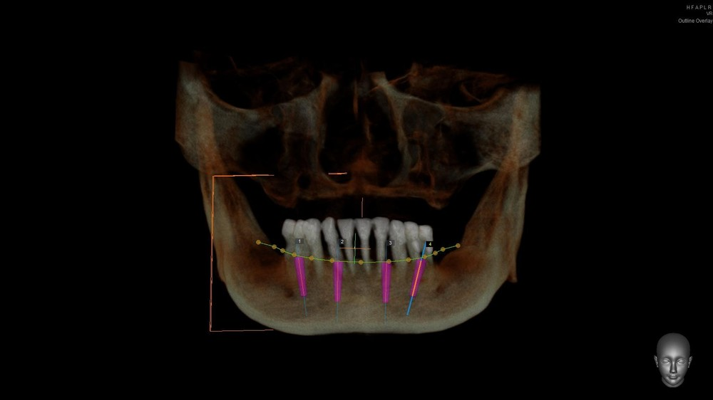 Virtual-Dental-Implant-Planning-Using-Dental-CT-1.jpg