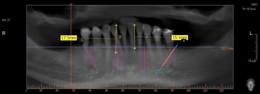 Virtual-Dental-Implant-Planning-Using-Dental-CT-2.jpg