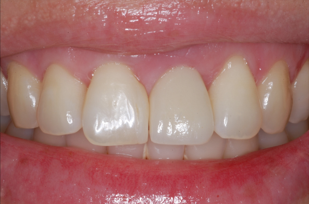 Single Front Tooth Replaced with Implant-1.png