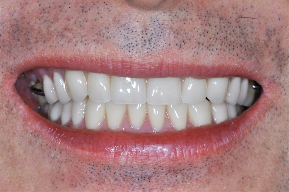 upper and lower overdenture options - main.jpg