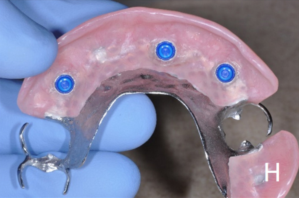upper and lower overdenture options - h.jpg